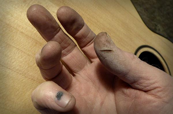 Brook Guitars Skin Damage News Archive 2016-2015