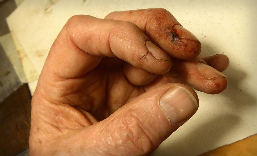 Bad Hands
